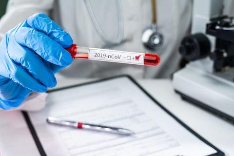 Major insurers will cover coronavirus testing